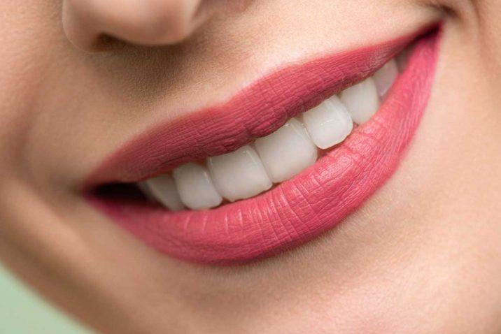 Tooth Bonding Better Than Veneers