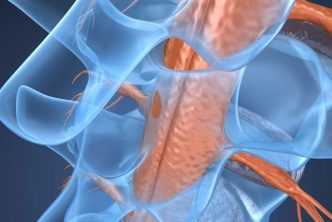 causes of a spinal tumor